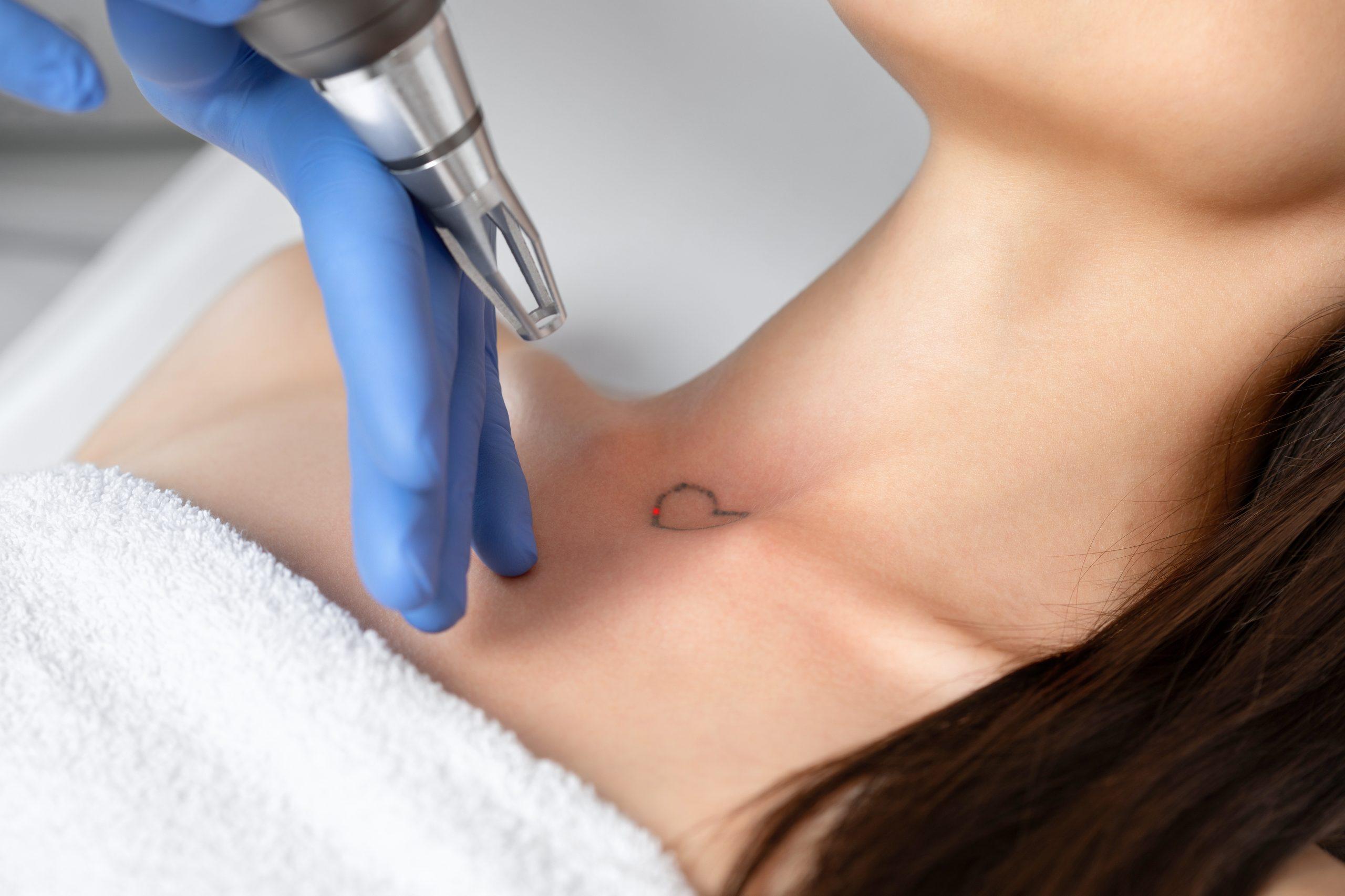 tatoveeringute eemaldamine